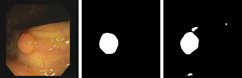CVC-612 polyp segmentation result